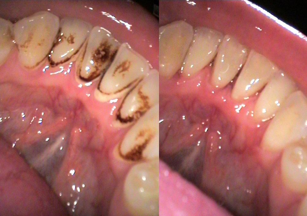 Гигиеническая чистка зубов: что это такое - фото до и после