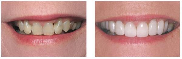 Художественная моделировка и реставрация зубов