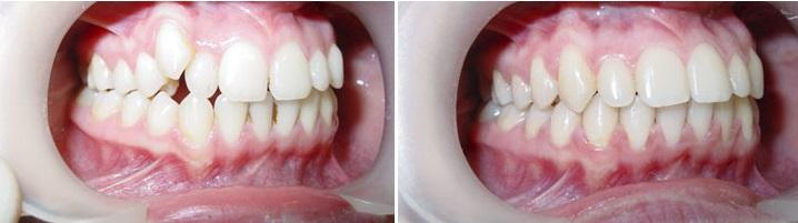 Брекеты детям, цены в Москве в стоматологии Доктор Мартин, сколько стоит поставить брекеты