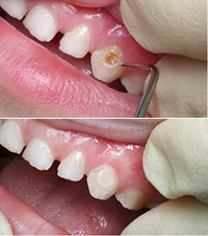 Шишка на десне над зубом у ребенка лечение