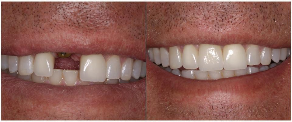 Имплантация одного зуба стоит