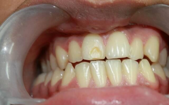 зависима гипоплазия зубов картинки безумно
