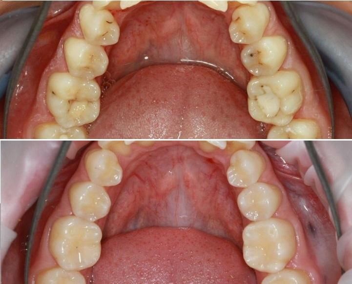 Зубные пломбы: какие бывают и какие лучше ставить пломбы для зубов